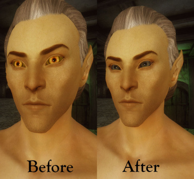 before and after altmer