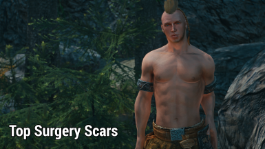 Top Surgery Scars Overlay - LE