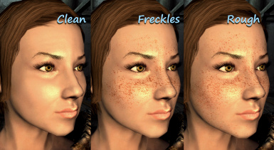 Freckles and Rough skin Complexion Retex