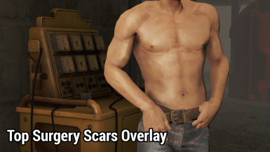 Top Surgery Scars Overlay