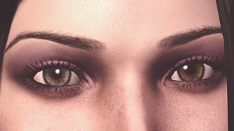 Heterochromia (new sclera) (that's about as much of a closeup as I could get)