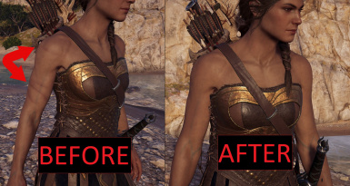 Kassandra's Body Scars Removed