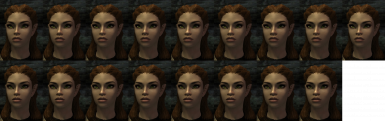 Starling - Nose options