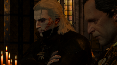 Optional Geralt face and body scarred