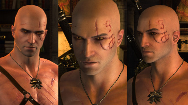 Bald YoungerGeralt  Original Scar